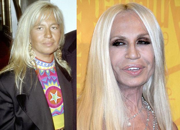 POTWORNIE WYCHUDZONA Donatella Versace! (ZDJĘCIA)